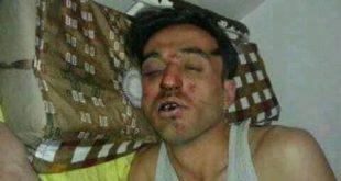 سردار داري اعلامي اخر قد يفقد حياتة بسبب انتقاد مليشيات البيدا