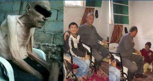 (كروزين) من السجائر وصورتين تقدمة النظام لإنقاذ حياة مسنٍّ بدير الزور